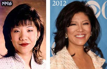 Julie-Chen-Plastic-Surgery-Before-After